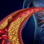 Cholesterol nie-HDL – dobry czy zły? Jakie są jego normy?