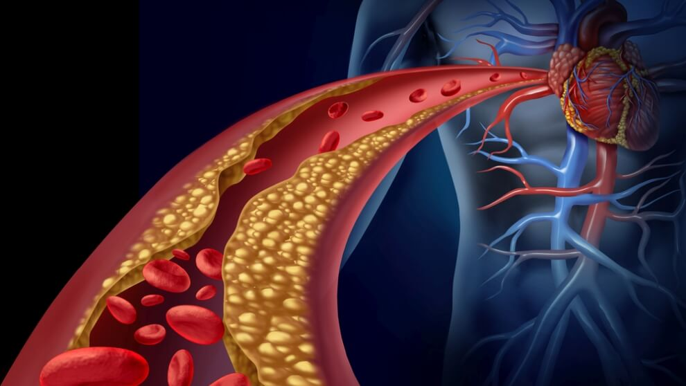 cholesterol nie hdl