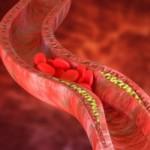 Podwyższony cholesterol – objawy i przyczyny. Jak walczyć ze zbyt wysokim cholesterolem?