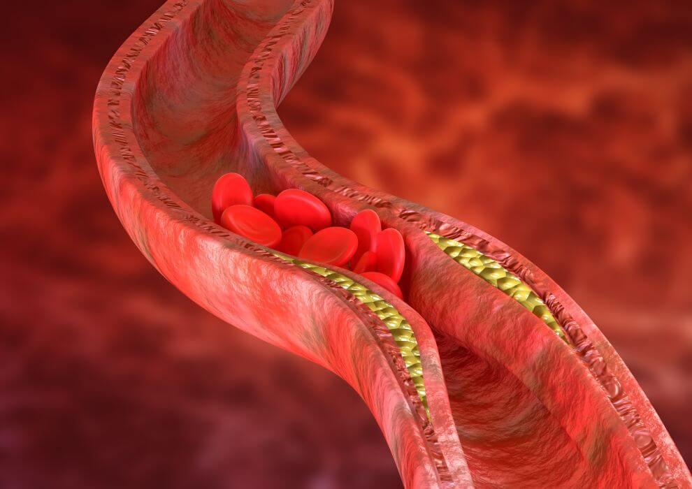 podwyższony cholesterol