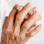 Dna moczanowa – jak rozpoznać rozwijający się artretyzm? Czy grozi Ci podagra?