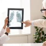 Rak płuc – najgroźniejszy nowotwór. Wszystko, co musisz o nim wiedzieć