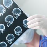 Udar mózgu – czy zawsze powoduje trwałe uszkodzenia? Poznaj przyczyny i objawy udaru